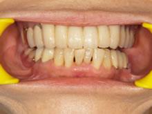 入れ歯なのに、まるで自分の歯のように咬める?コーヌス義歯とは