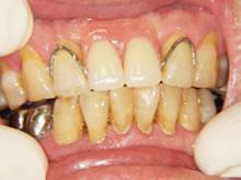 プラスチック義歯