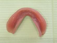 無痛義歯(シリコーン義歯)