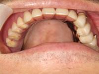 最も天然の歯に近い入れ歯、コーヌス