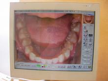 常に最新の入れ歯技術を習得しています